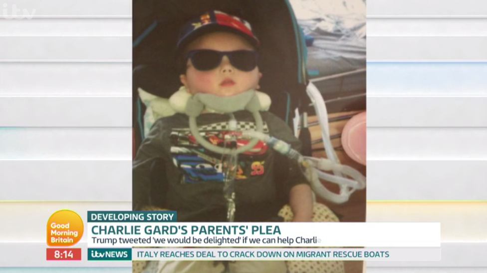 The tot underwent the experimental treatment that Charlie's parents want their son to undergo