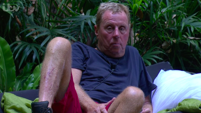 Harry Redknapp Bookies' Favourite To Win 'I'm A Celebrity'
