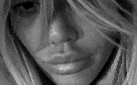 Too far? Fans SHOCKED by former Geordie Shore star's plumped up pout