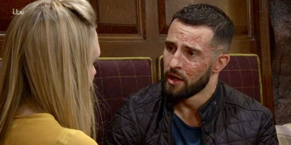 Rebecca White and Ross Barton split up