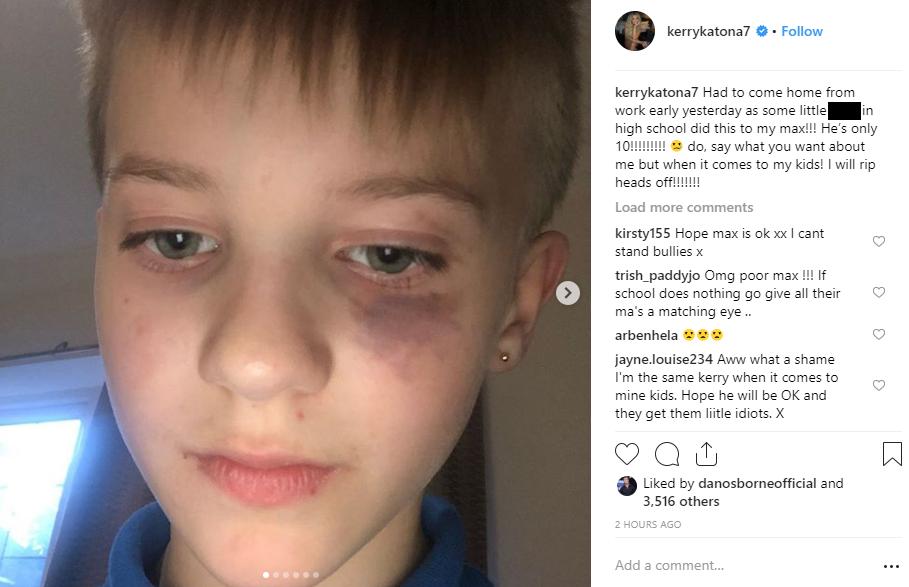 Kerry Katona's son gets beaten up