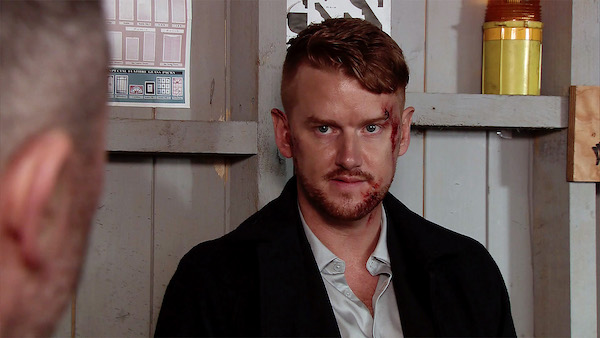 "Mikey North says his back ""has not been right"" since Coronation Street fight scene"