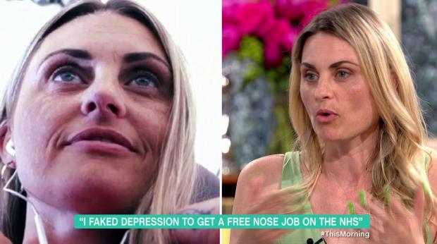 Former glamour model Carla Bellucci faked depression to get nose job