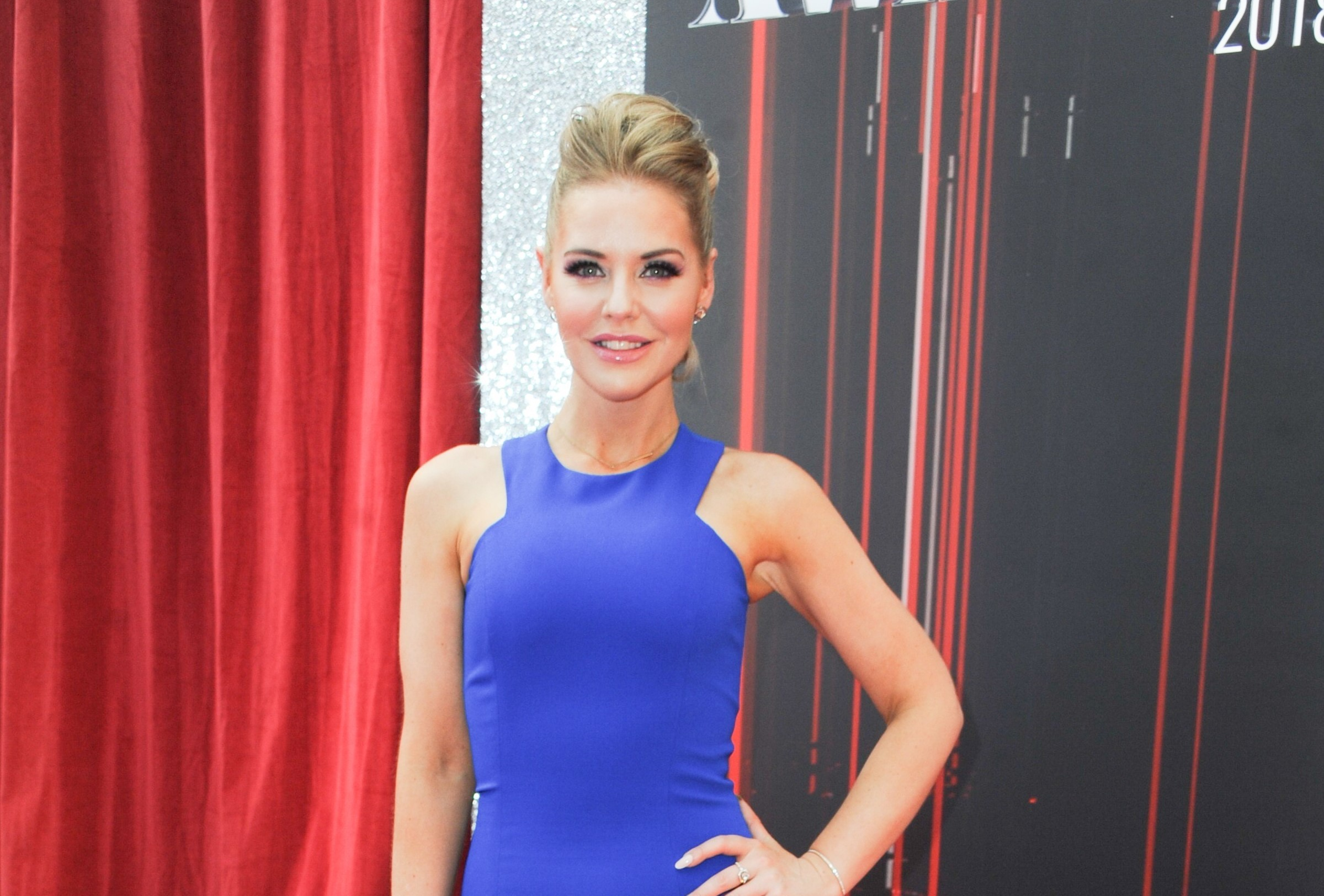 Hollyoaks' Stephanie Waring speaks on past anorexia battle that saw her drop to four-and-a-half stone