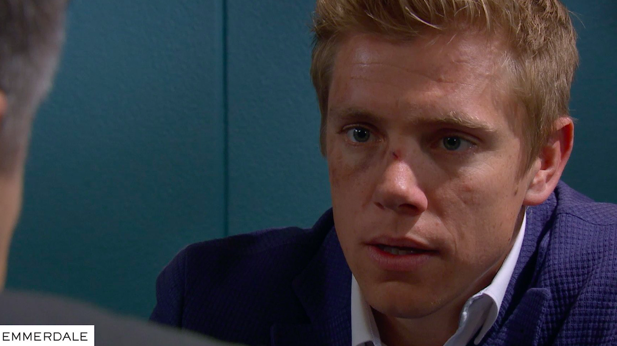 Emmerdale fans desperate for Robert Sugden to return to save the show