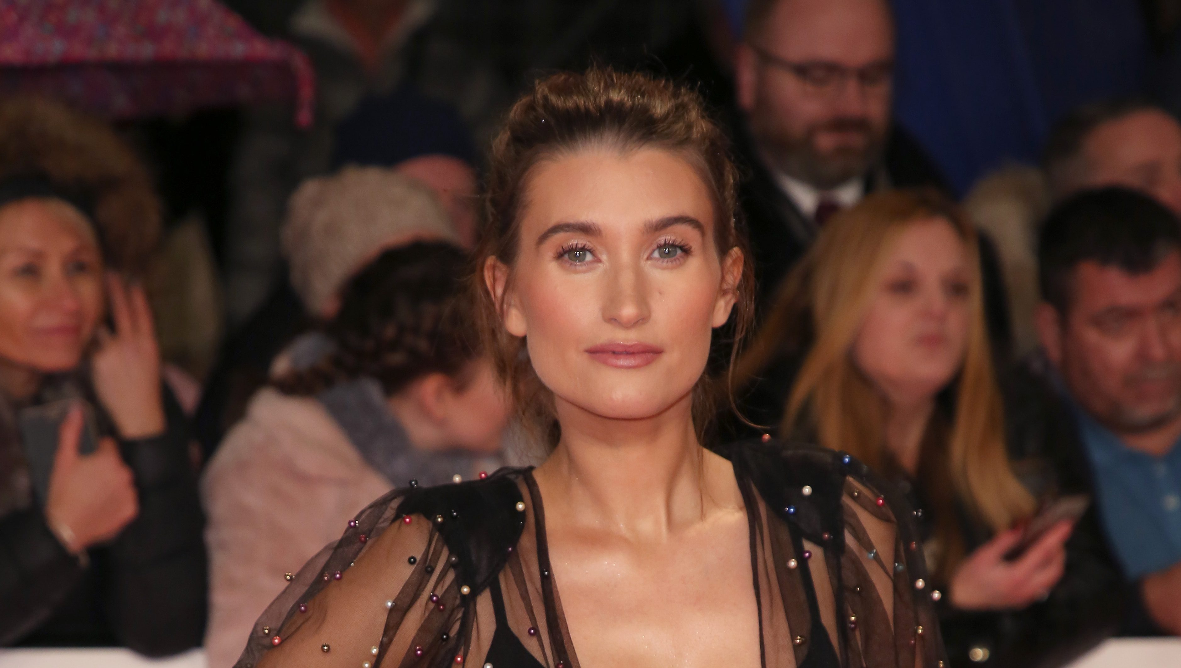 "Charley Webb reveals struggle with ""weird"" hair since giving birth"