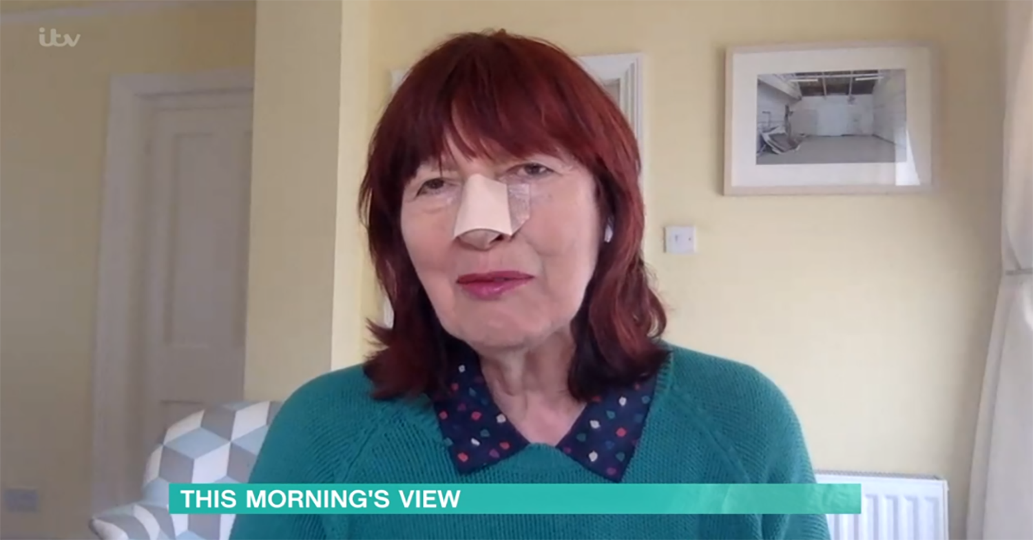 Janet Street Porter sports nose plaster after undergoing surgery to remove skin cancer