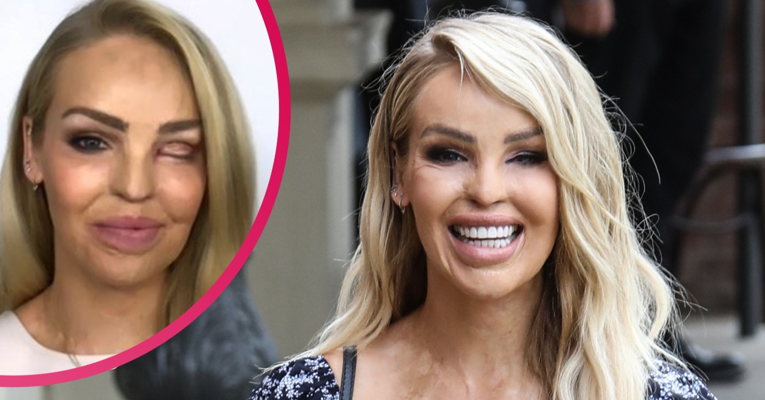 Katie Piper Hailed An Inspiration On The One Show Entertainment Daily