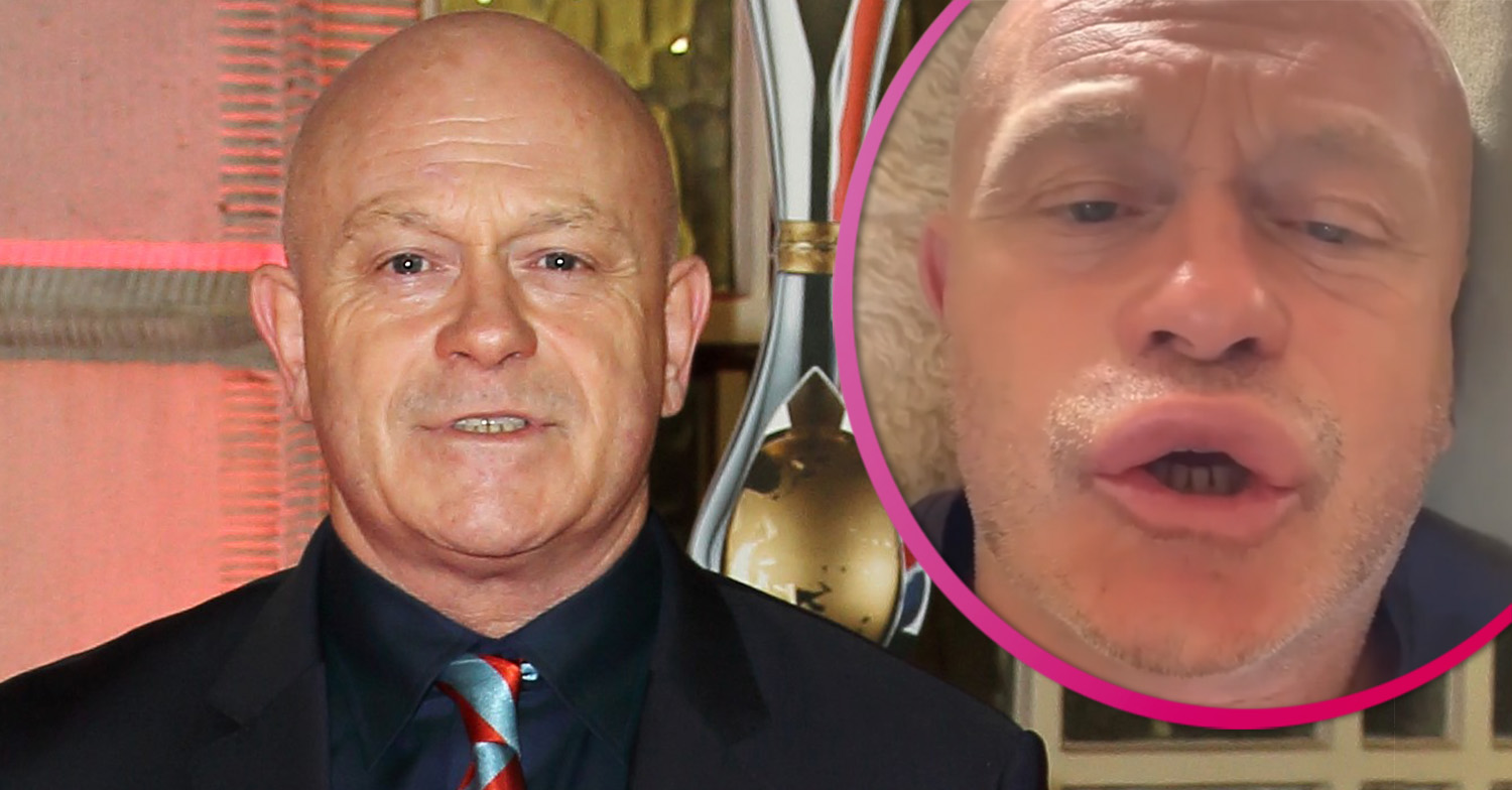Ross Kemp thanks NHS after face swells up following wasp sting