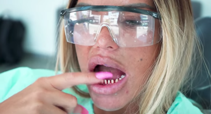 Katie Price Fans Say Boyfriend Carl Has Destroyed His Teeth After Surgery