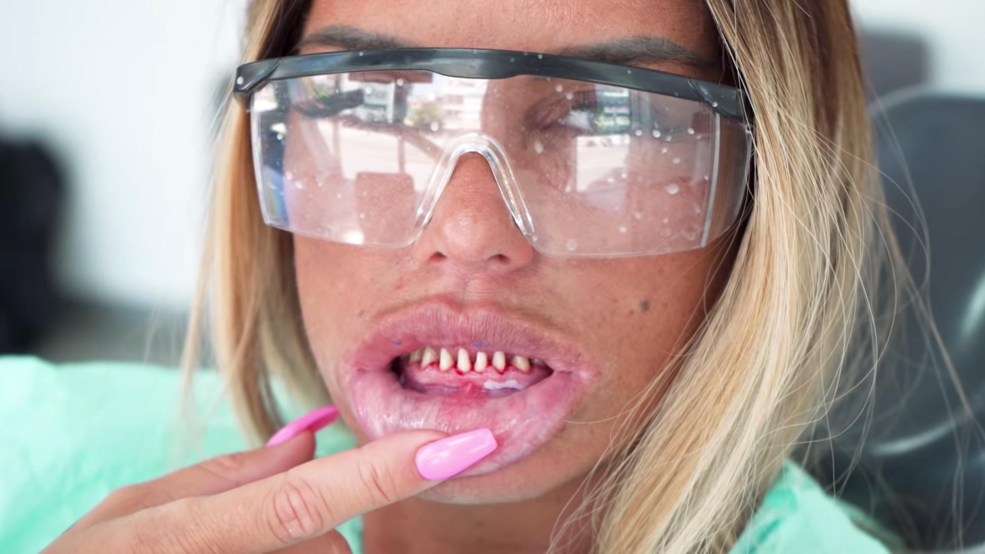 Katie Price teeth