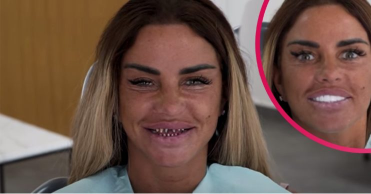 katie price veneers
