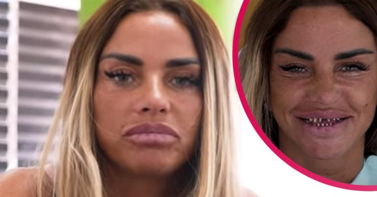 katie price veneers turkey