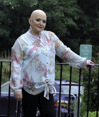linda Nolan after she lost her hair