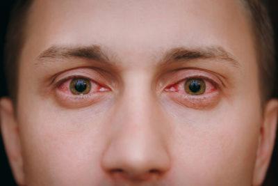 new symptoms of covid - sore eyes