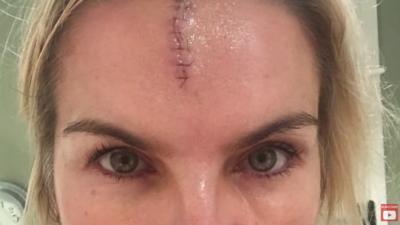 Katy Hill reveals she had a nasty head injury