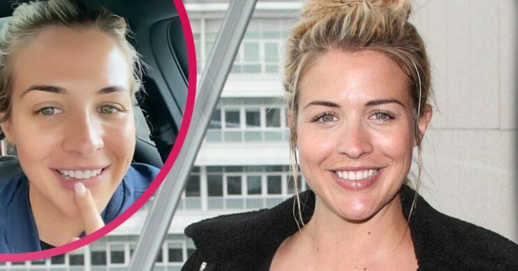 Gemma Atkinson on Instagram showed off her new teeth